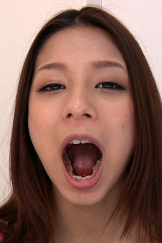 歯観察 写真付き 「香里奈チャン編」
