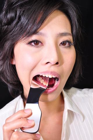 歯観察 写真付「ケイちゃん編」