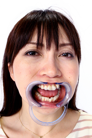 熟女の歯、観察
