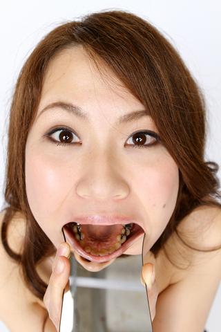 歯の観察 ほのかサン篇