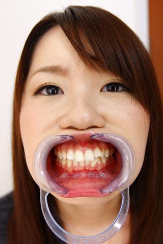 歯とのどちんこ観察