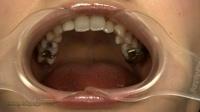 フェチ:歯観察 銀歯  写真付「愛梨チャン篇」