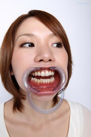 歯と喉ちんこ「口内観察」データ写真9枚つき