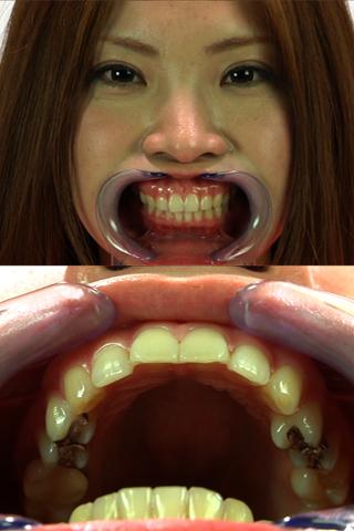 ハイビジョンで【歯並び美少女】の舌遊びと喉奥の秘境