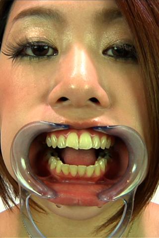★加賀美セリナ様の口内観察★ハイビジョン高画質で見る【歯】