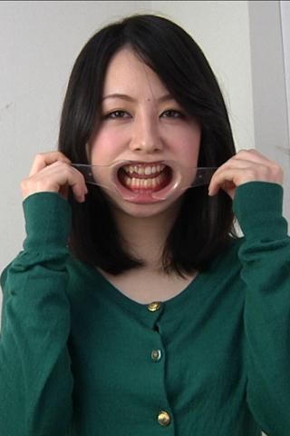 歯観察 写真付「あゆみチャン編」