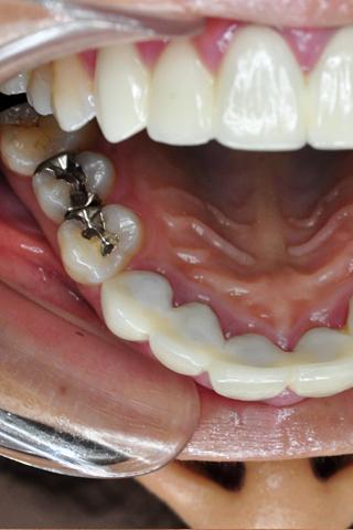 歯観察 写真付「さゆみ編」