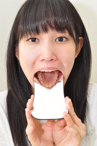 歯観察 写真付「結衣ちゃん編」