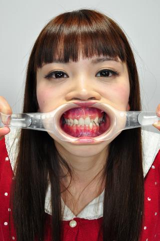 歯観察 銀歯  写真付「愛梨チャン篇」
