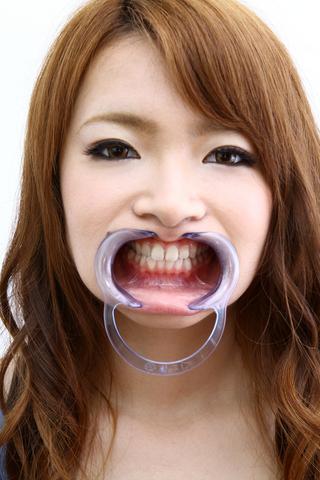 歯、観察はなチャン編 (写真データ付)