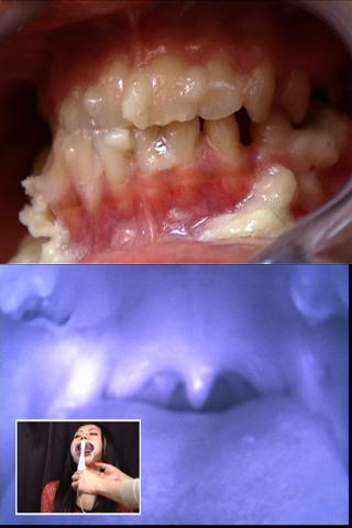 歯とのどちんこ観察して 精子うがい